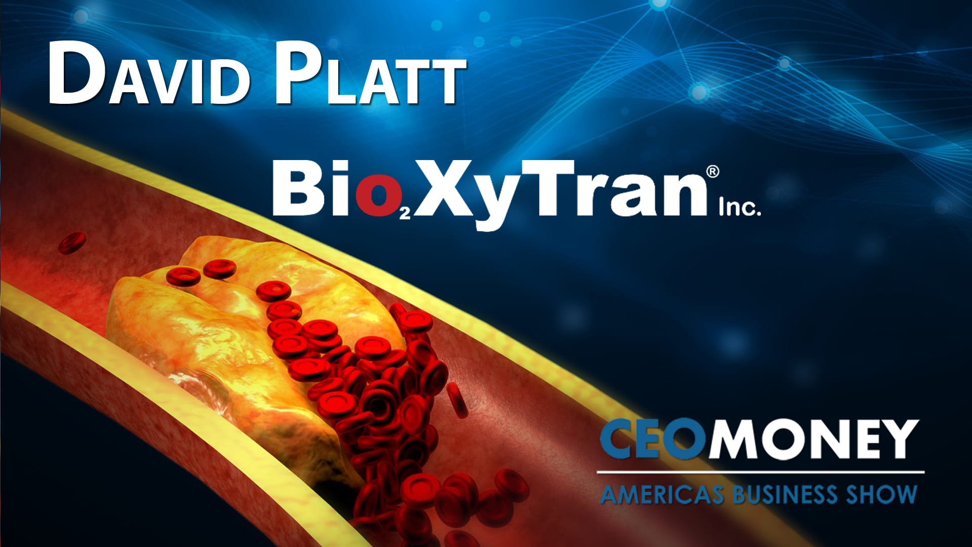 Bioxytran is developing a drug to prevent catastrophic brain damage from strokes